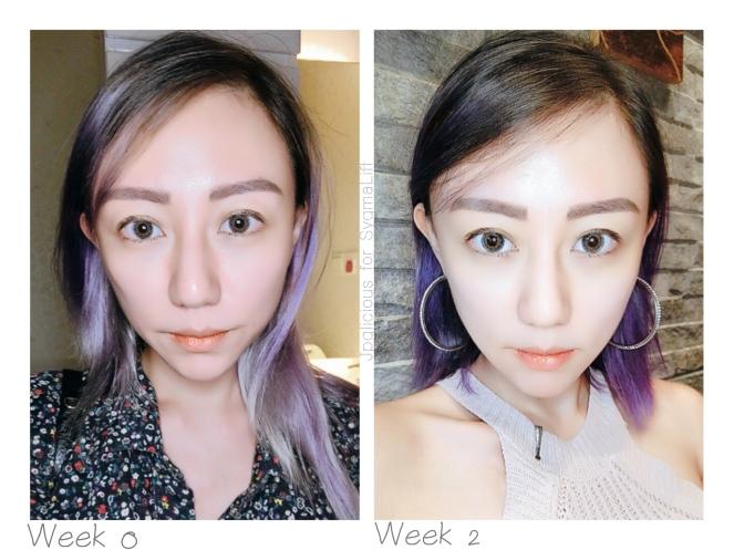 SygmaLift V Contourae Face - Kowayo Aesthetic Clinic Singapore - Jpglicious (11)