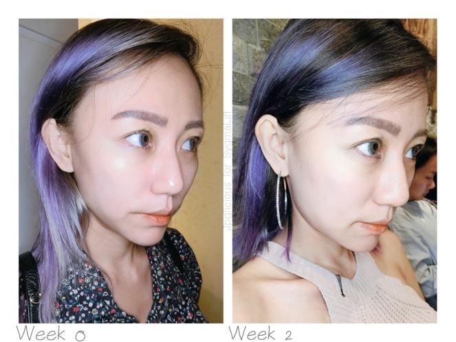 SygmaLift V Contourae Face - Kowayo Aesthetic Clinic Singapore - Jpglicious (12)