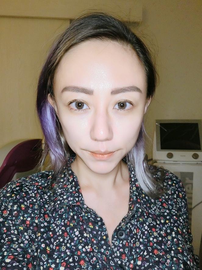 SygmaLift V Contourae Face - Kowayo Aesthetic Clinic Singapore - Jpglicious (5)