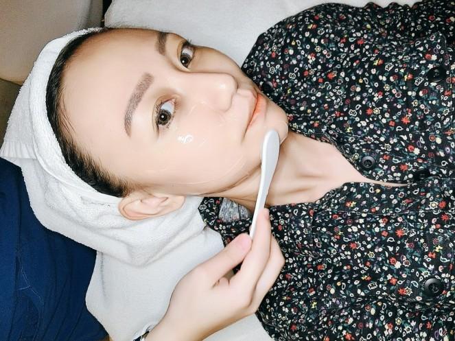 SygmaLift V Contourae Face - Kowayo Aesthetic Clinic Singapore - Jpglicious (7)